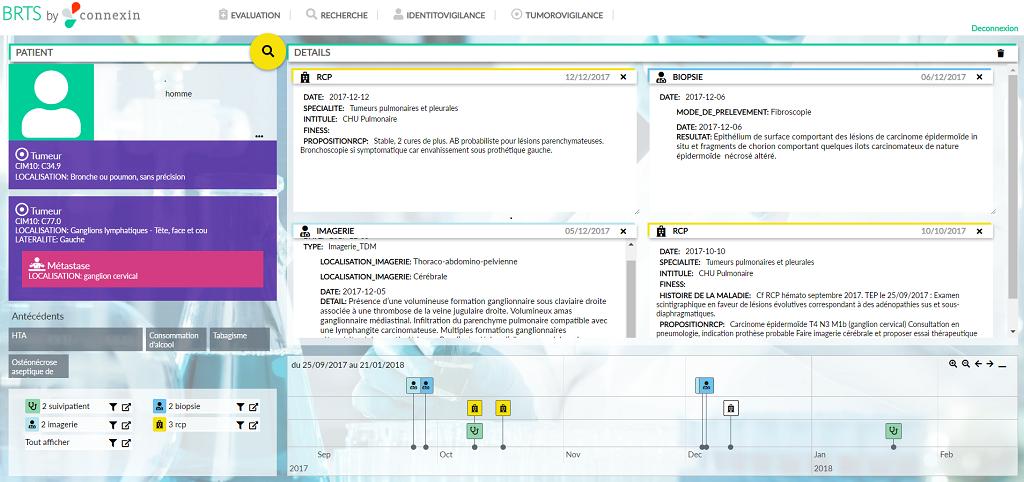 Capture d'écran BRTS/Connexin