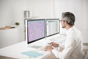 Le système de pathologie numérique développé par Philips.